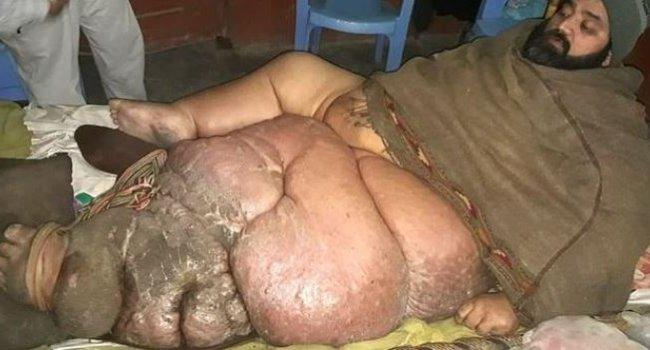 Վեր կենալու համար ինձ 6 մարդու օգնություն է պետք.Տղամարդը բժիշկներին աղաչում է անդամատել իր 150 կգ կշռող ոտքը