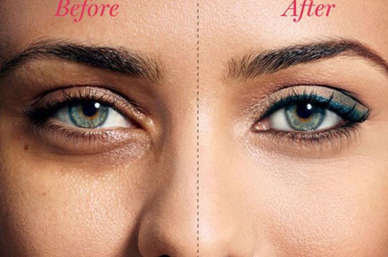 Նշաններ, որոնք կարող են մատնանշել աչքի քաղցկեղի մասին